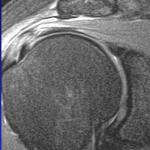 Resonancia magnética de hombroo