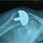 Prótesis de Recubrimiento de hombro