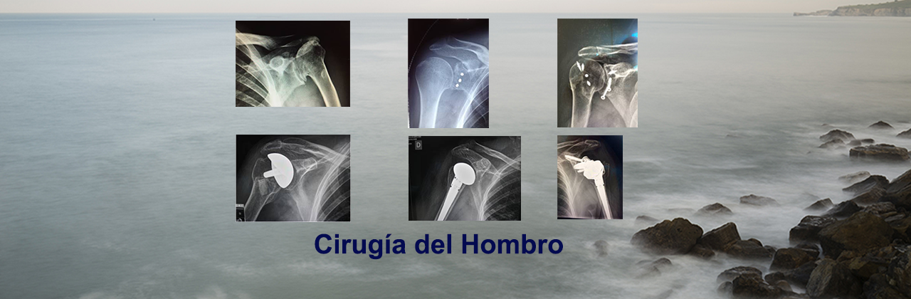 cirugia del hombro